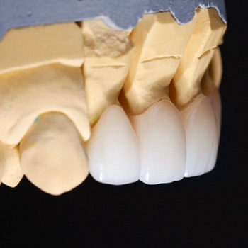 model of porcelain veneers on a mouth